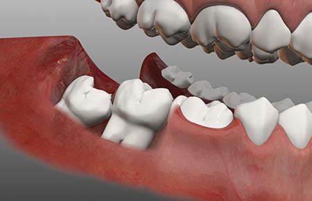 جراحی دندانهای عقل و نهفته