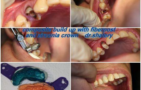 بازسازي دندان به شدت پوسيده و شكسته
