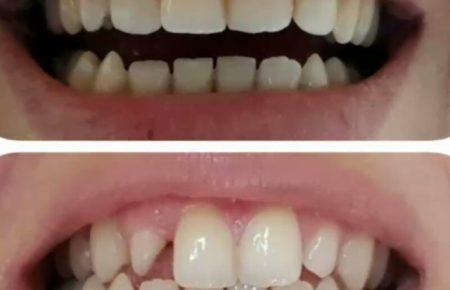2واحد لامینت برای دندانهای کناری بالا
