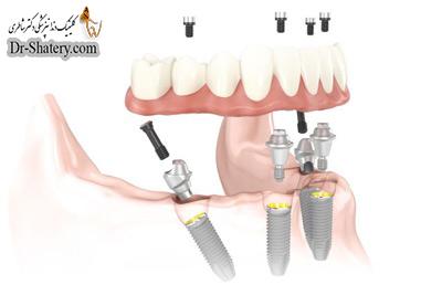 پنج تفاوت ساختاری تاثیرگذار ایمپلنت و دندان طبیعی
