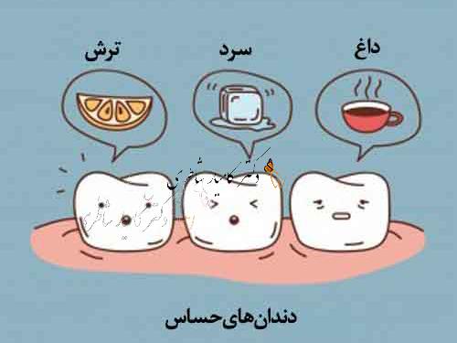 حساسيت عاج دندان
