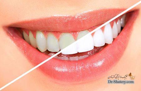 استراتژی های کلینیکی برای زیبایی شناختی ترمیم دندان های قدامی : اصول انتخاب رنگ و رزین کامپوزیت