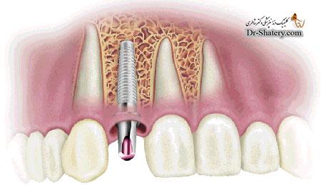 درمان ایمپلنت دندان در بیماران با پوکی استخوان