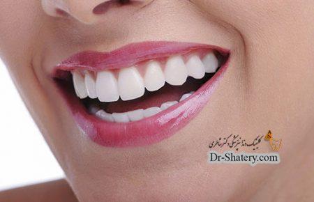 تاثیر بلیچینگ بیرونی دندان بر روی مواد ترمیمی