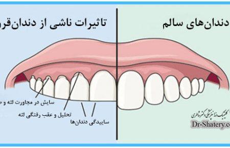 گیرکردن دندان ها در شب(دندان قروچه)