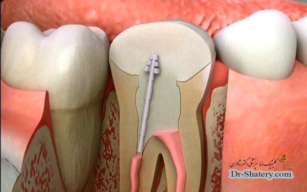 عصب کشی دندان و درمان ریشه