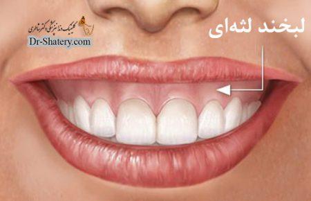 درمان لبخند لثه ای(ژنژیوکتومی )