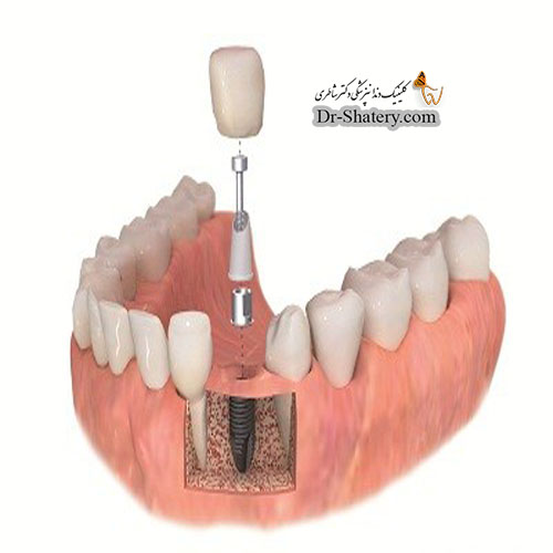 شکست ایمپلنت دندان: علل اتیولوژی و عوارض