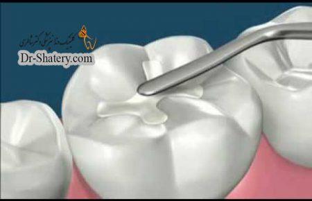 خواص مکانیکی مواد ترمیمی دندانپزشکی