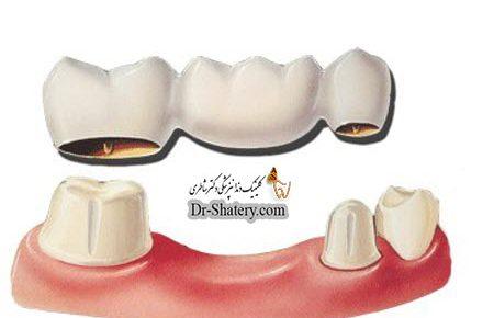 پل یا بریج دندان
