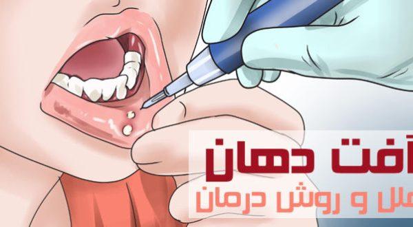 زخم دهان چیست و عوامل ایجاد آن