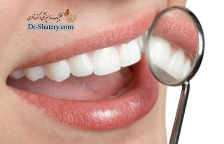 آشنایی با برخی اصطلاحات دندانپزشکی