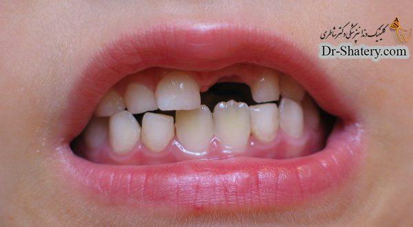 خارج شدن دندان از فک