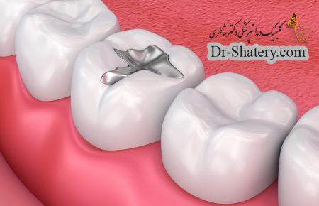 بررسی کلینیکی عملکرد و بهداشت مواد دندانی جدید، به نام بیودنتین، در ترمیم دندان های خلفی