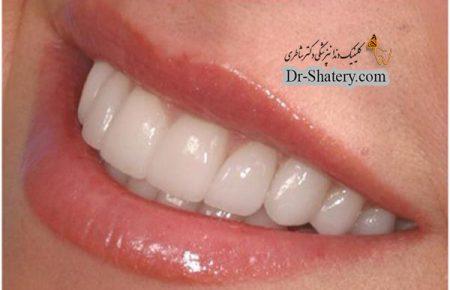 علت و ضرورت زیبایی دندان چیست ؟
