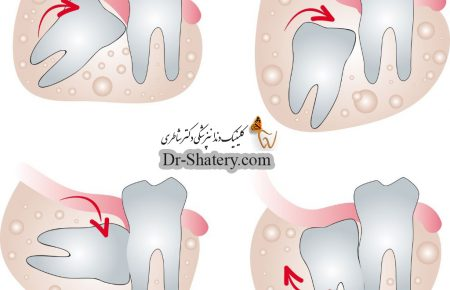 دلیل خارج کردن دندان عقل چیست؟