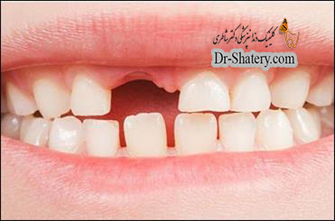 علتهای جایگزین کردن دندان افتاده