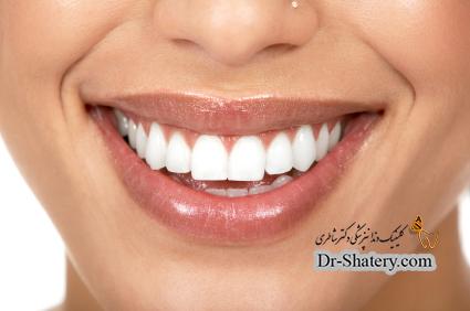سفید ماندن و سفید شدن دندانها