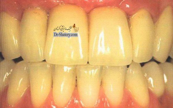 تغییر رنگ و زرد شدن دندانها