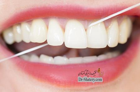استفاده از نخ دندان برای لبخندی درخشانتر