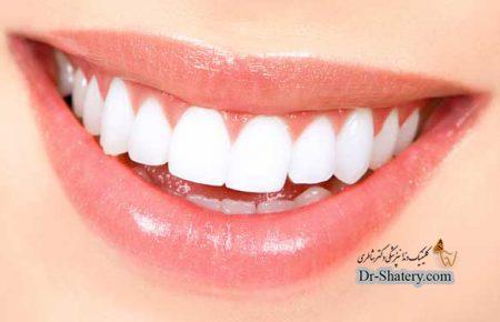 داشتن لبخندی زیبا