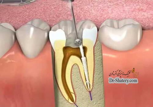 دانستنی های عصبکشی دندان برای اولینبار