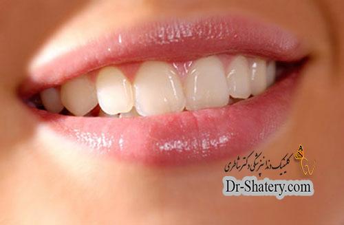 رابطه دهان سالم با بدن سالم