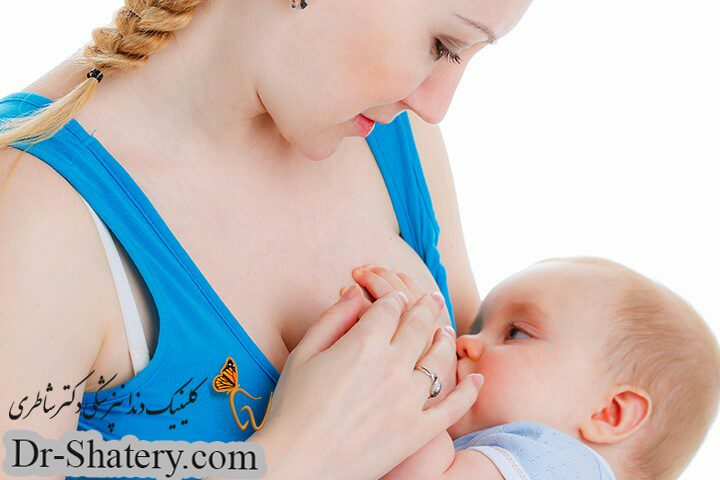 پوسیدگی دندان کودک در اثر شیردهی