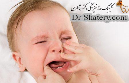 روش های کاهش درد دندان در اوردن نوزادان