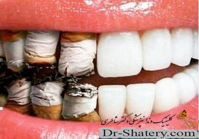 دخانيات در كمين سلامتي دهان و دندان
