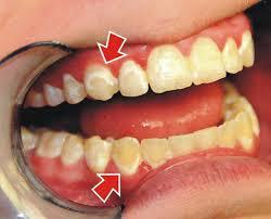 علت ایجاد لکه روی دندان چیست؟