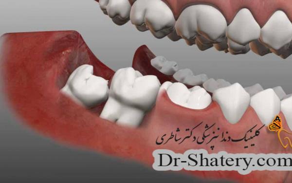 مشکلات دندان نهفته در فک