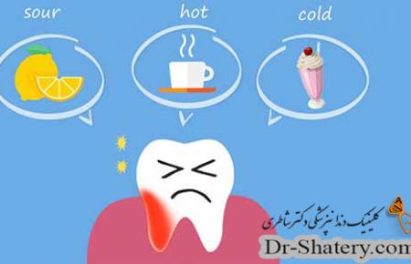 حساسیت های دندان و درمان آن