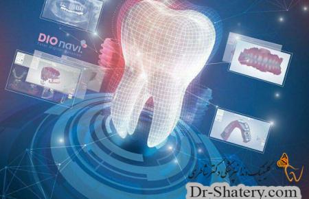 روش های دیجیتال و پیشرفت علم ایمپلنتولوژی