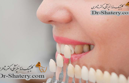 رنگ لمینیت دندان